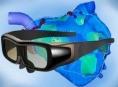 Chirurgové FN Olomouc operují s 3D brýlemi