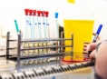 FN Olomouc rozšiřuje provozní dobu odběrového místa na vyšetření COVID -19