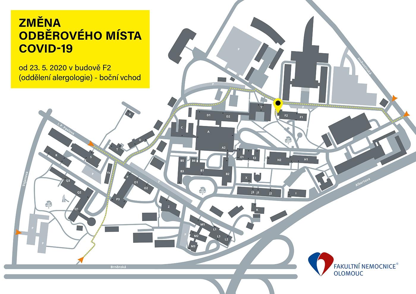 Odběrové místo ve FN Olomouc se přestěhovalo zdroj:FNOL